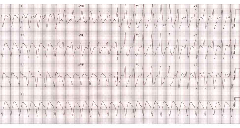 HTN DM CAD 12 Lead ECG