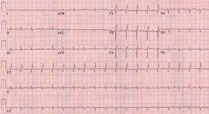 Heart block or not.